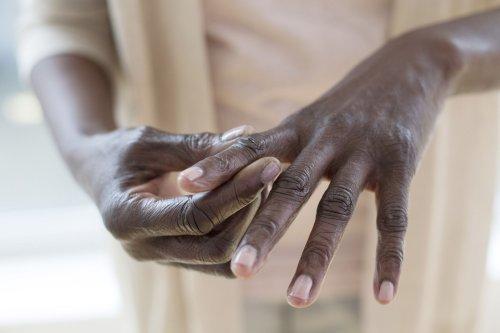 10+ Early Signs and Symptoms of Rheumatoid Arthritis