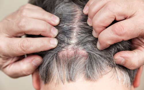 Causes of Scalp Scabs and How to Treat Them