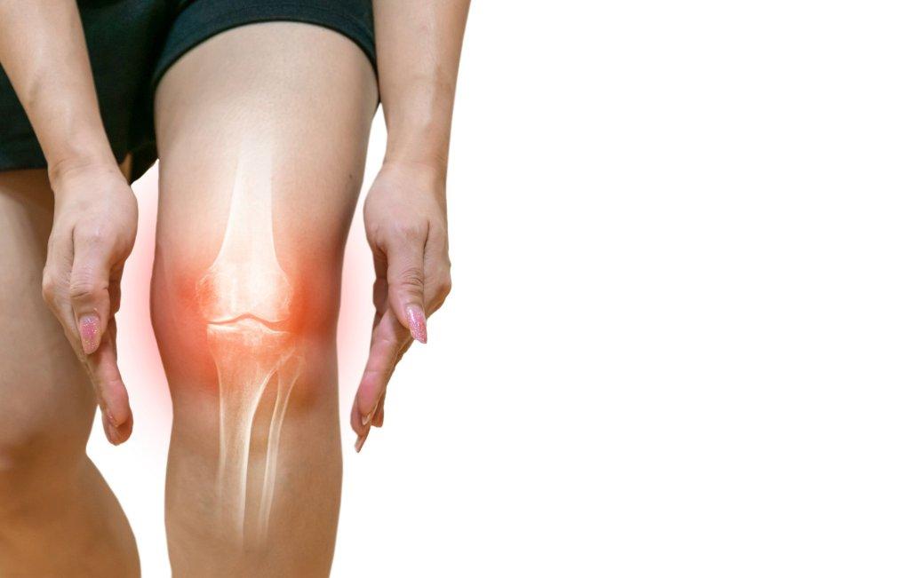OSTEOARTHRITIS,  RHEUMATOID ARTHRITIS, - cover