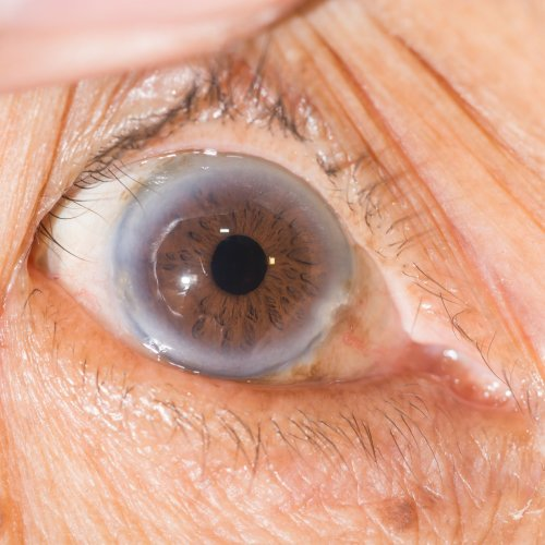 High Cholesterol and the Eyes: Signs and Symptoms