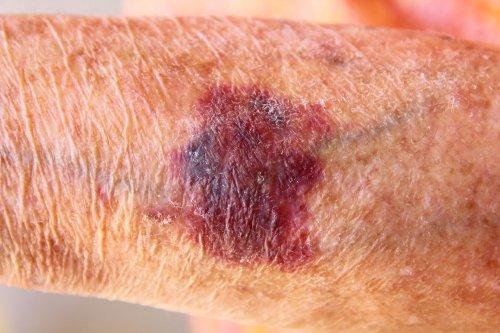 What Is Solar Purpura Bruising?