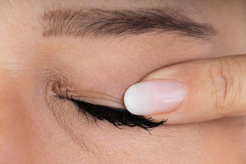How Meibomian Gland Dysfunction Is Diagnosed