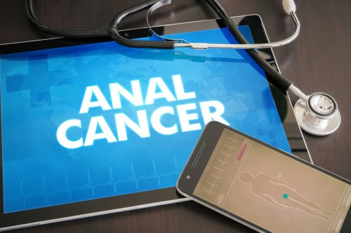 Anal (Butt) Cancer: Overview and More