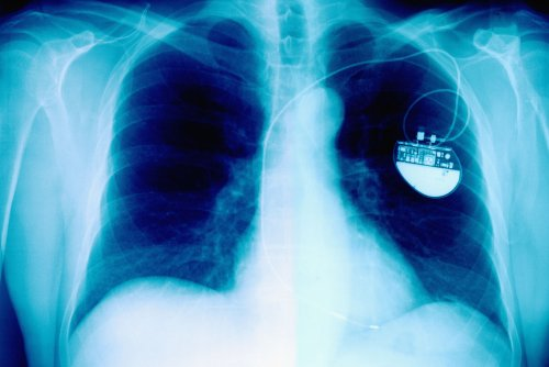 New Pacemaker Disappears When No Longer Needed