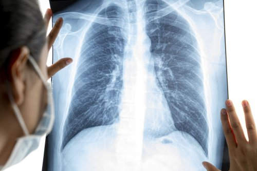 What Is a Chest Infection?