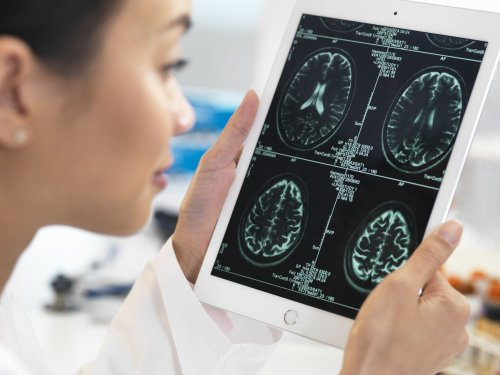 The Differences Between Encephalopathy and Encephalitis
