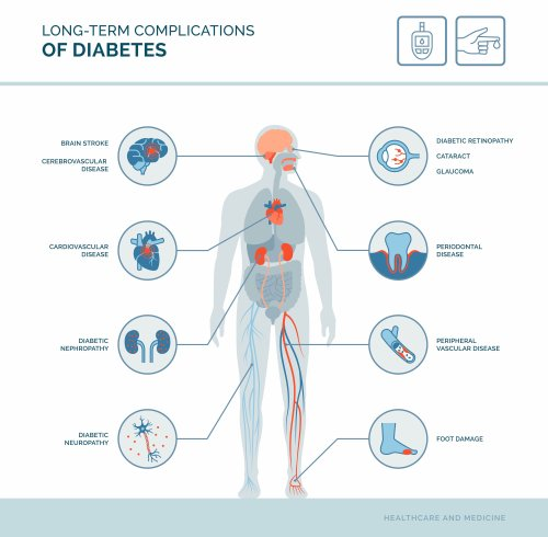 Type 2 Diabetes Complications: Overview and More