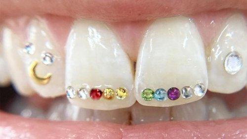 Tooth gems are having their Y2K comeback on TikTok