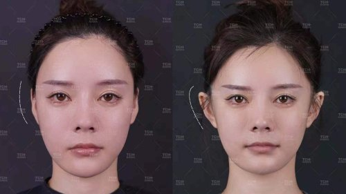 'Elf Ears' Are Trending in China. People Are Undergoing Surgery To Get Them.