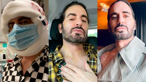 Marc Jacobs Opens Up About His Facelift, and Encourages a New Era of Transparency Around Plastic Surgery