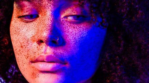Dal melasma al sole, passando per l'acne: facciamo chiarezza sulle macchie della pelle