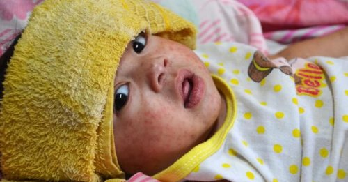 Measles cases in Europe quadruple as vaccination rates drop