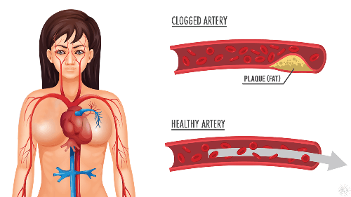 How to Unclog Clogged Arteries Naturally With Just Three Ingredients
