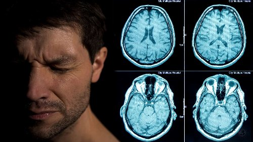 Researchers Reveal Alzheimer's Treatment That Fully Restores Brain Function
