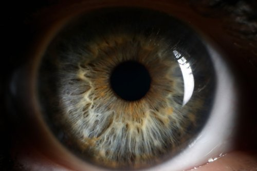 Our eyes may provide early warning signs of Alzheimer's and Parkinson's