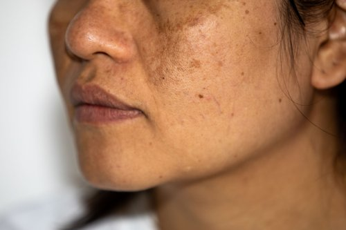 Hyperpigmentation is a common skin problem. Here's what you can do about it.