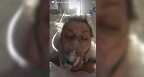 'None of this is worth it:' Fairhope business owner on ventilator sends message to community