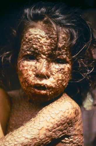 Smallpox - Wikipedia