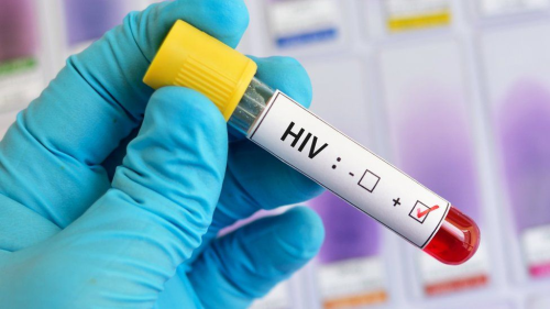 New treatment may lead to HIV cure