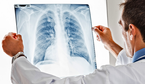 New cost-effective drug to treat lung cancer is finally here