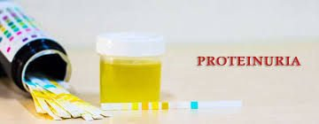 Can Ayurvedic Treatment Manage Proteinuria?