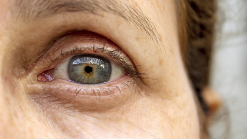 These Popular Diabetes Medications May Also Prevent Glaucoma