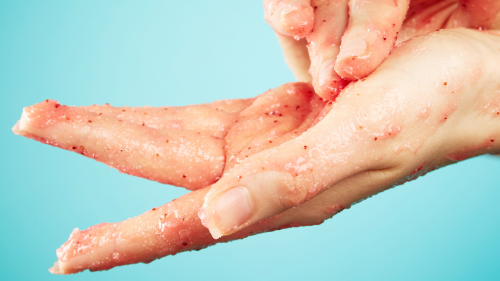 This DIY Miracle Scrub Naturally Cured One Woman's Eczema