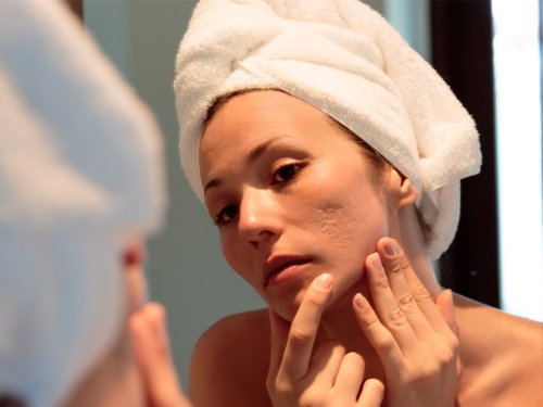 3 Ways to Fade Old Scars and Brighten Your Skin
