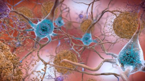Cientistas encontram formas incomuns de ferro e cobre em cérebros com Alzheimer