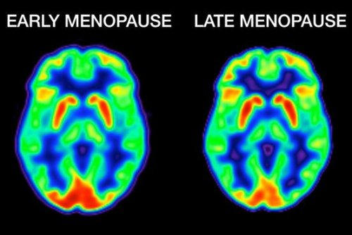 The Surprising Good News on How Menopause Changes Your Brain