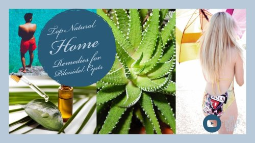 Top Natural Home Remedies for Pilonidal Cysts