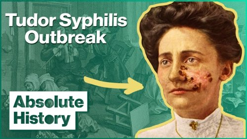 How An Outbreak Of Syphilis Changed Tudor Life | Hidden Killers | Absolute History