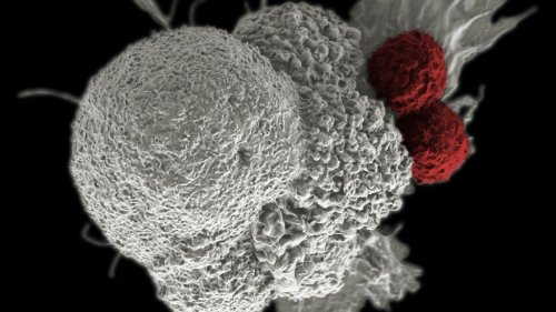 Cancer Breakthrough: Scientists Discover Tumor Stopper That Keeps Cells From Spreading - Zenger News