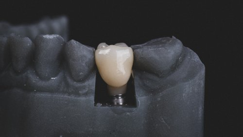 New Way To Avoid Rejection Of Oral, Orthopedic Implants - Zenger News